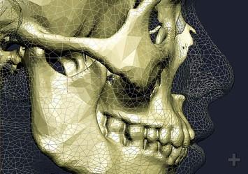 трехмерная стоматология2